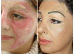 basma-hameed-before-after-cosmetic-tattoo
